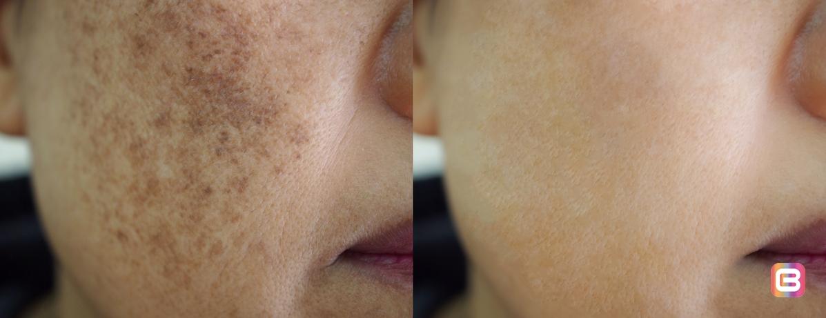 Делайте вашу кожу здоровой и сияющей